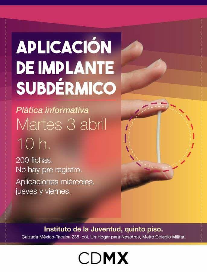 Injuve: Implante subdérmico, gratis